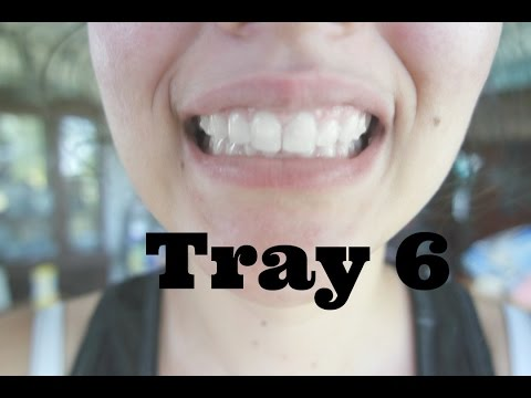 how to make invisalign trays clear again