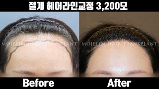 헤어라인교정 수술 후기   절개 헤어라인교정 3,200…