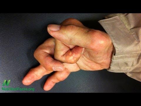Turmeric Curcumin and Osteoarthritis