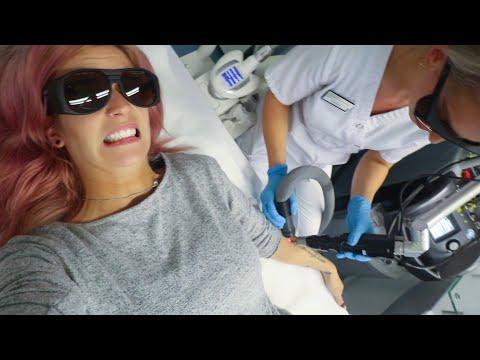 SPIJT VAN TATTOO | Mijn Laserbehandeling