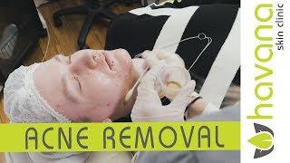 Baixar Acne and Spot Removal Treatment at Havana Skin Clinic