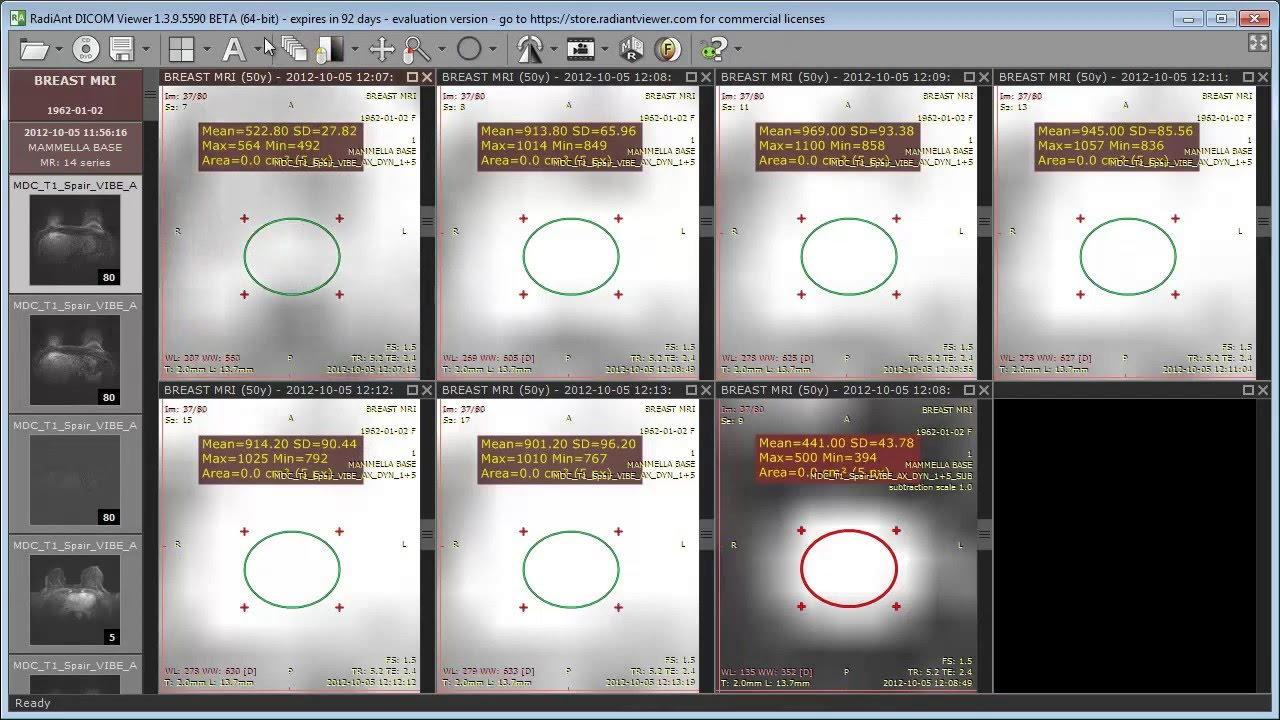 RadiAnt DICOM Viewer 1 3 9 BETA - new features