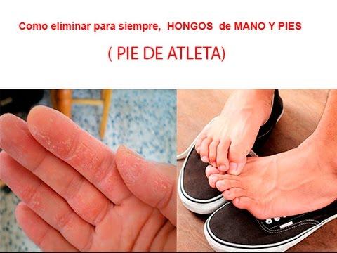 El hongo de los pie que tratar el calzado