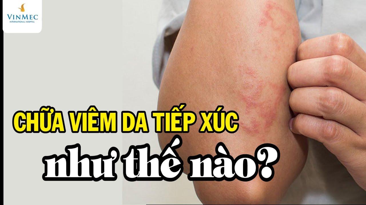 Chữa viêm da tiếp xúc như thế nào? BS Nguyễn Thị Thu Trang, BV  Vinmec Central Park