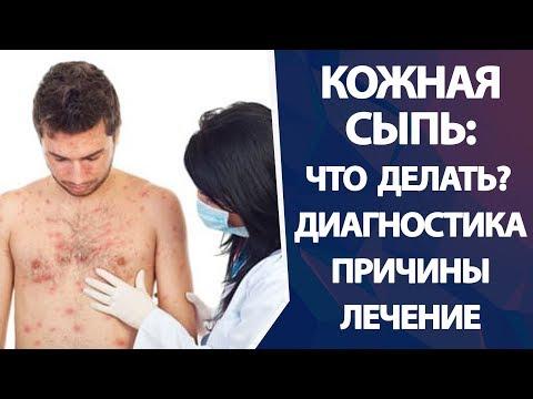Кожная сыпь. Лечение кожной сыпи. Виды кожной сыпи.
