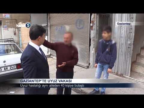 GAZİANTEP'TE UYUZ VAKASI