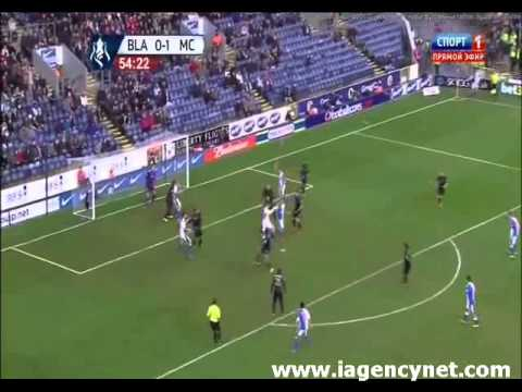 Blackburn Rovers 1 - 1 Manchester City Highlights - iAgencyNet.com