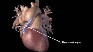 Coronary artery bypass surgery.