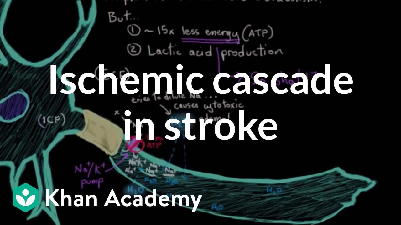 The ischemic cascade in stroke