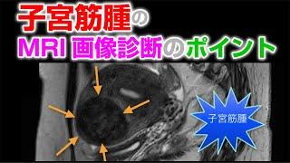Repeat youtube video 子宮筋腫のMRI画像診断【画像診断チャンネル】