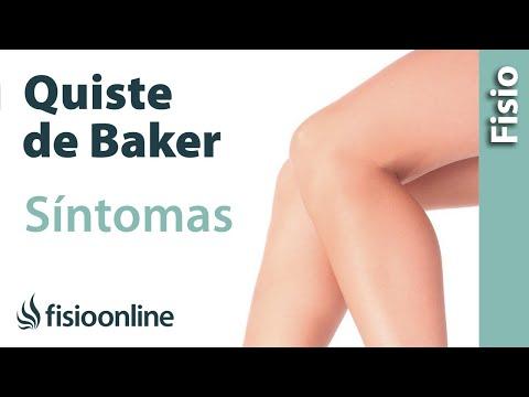 Quiste de Baker - Qué es, síntomas y tratamiento