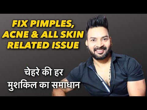 fix-pimples,-acne-&-all-skin-problems-.-चेहरे-की-हर-मुशकिल-का-समाधान