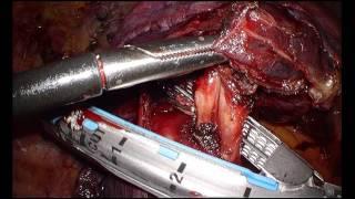 lobectomies par thoracoscopie