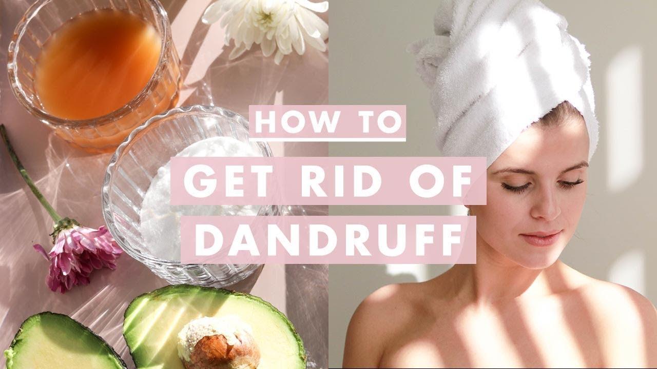 Scalp for dandruff remedies itchy natural and home Grandma's Dandruff