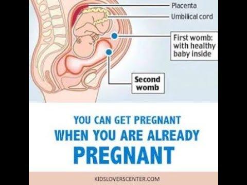 Superfetation- Pregnant While Pregnant- SheCare