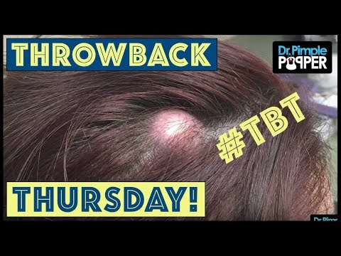Reminiscing with Dr. Pimple Popper: TBT Pt.14
