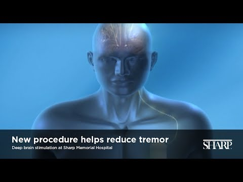 Deep Brain Stimulation at Sharp Memorial Hospital