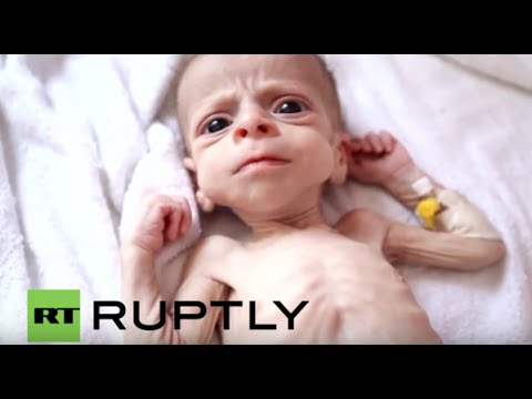 Yemen: Malnutrition menaces young children as conflict continues, From YouTubeVideos