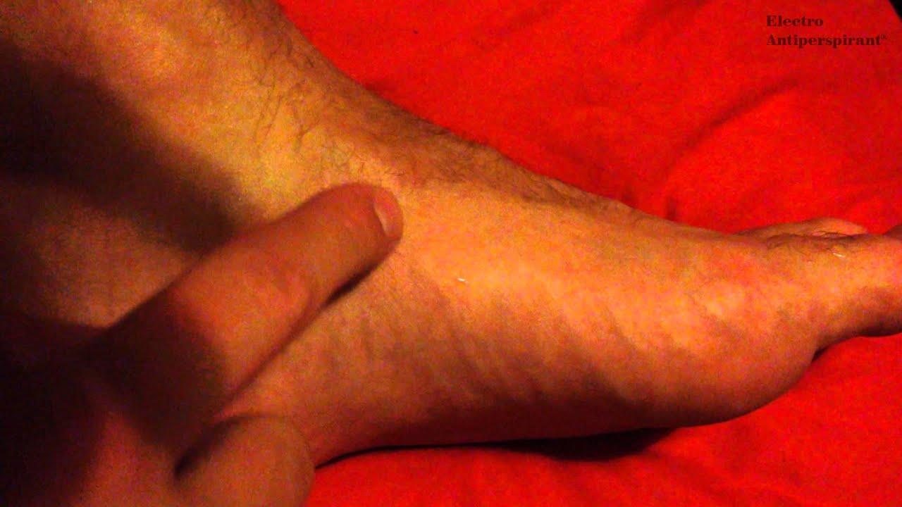 a lábak vörös foltokat öntöttek
