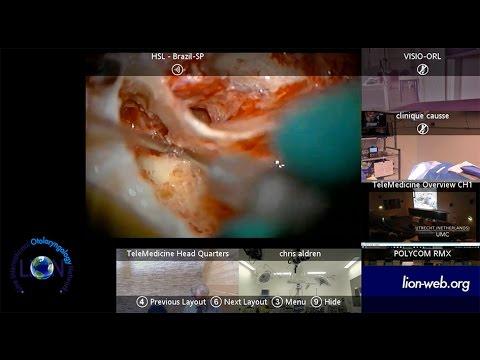 The 11th LION Global Broadcast Cholesteatoma CWUp Technique Oswaldo L Cruz