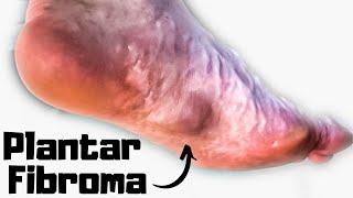 Plantar Fibroma Home Treatment [BEST Exercises & Remedies 2020!]