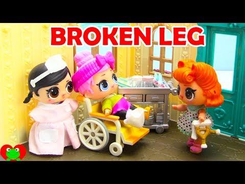 LOL Surprise Doll Falls Off Ladder Broken Leg