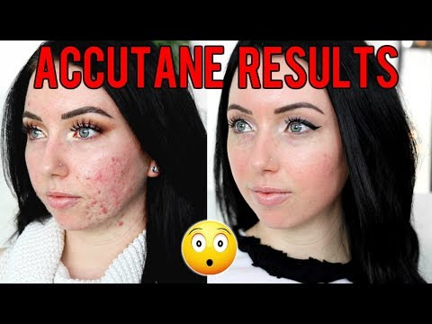 MY ACC*TANE JOURNEY 6 MONTH RESULTS Before & After, Side Effects, Would I Do it Again?...