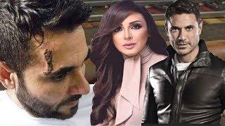 الفنان أحمد عز يتعرض لإصابة شديدة وما حدث في وجهه أفزع محبيه وأنغام تكشف لأول مرة بزواجها منة