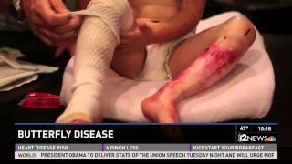 (Warning - graphic content) Girl with rare Butterfly Disease.