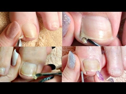 👣#1 Pedicure Tutorial Big Toenail Cleaning Compilation Real Time 👣✔