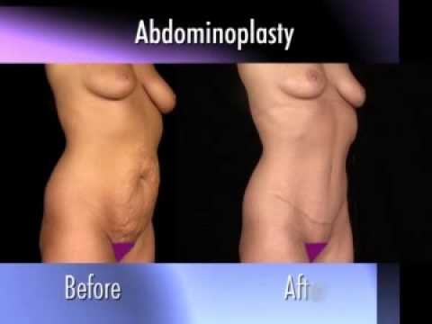 Dr. Nachbar on Abdominoplasty (Tummy Tuck)