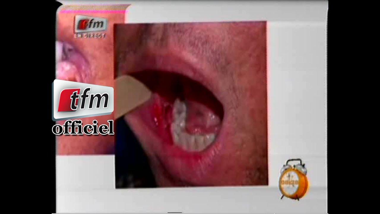 Yeewu leen 19 mars 2015 sant avec fatou kin d me cancer de la bouche youtube - La femme a la bouche fendue ...