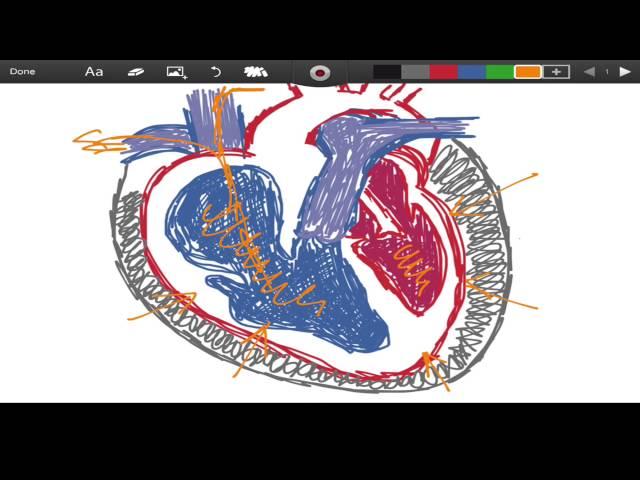 Becks Triad - Cardiac Tamponade - EMTprep.com