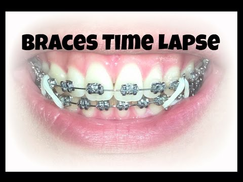 how to make your braces stop hurting