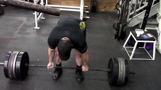 Injury Prevention - Common Causes Of Deadlift Injuries
