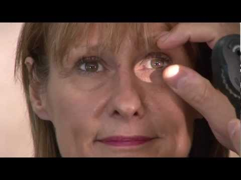 Ophthalmics Video 6 - Eye Exam