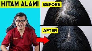 Download lagu Cara Mengatasi Ubanan Rambut Putih Secara Alami - dr Saddam Ismail