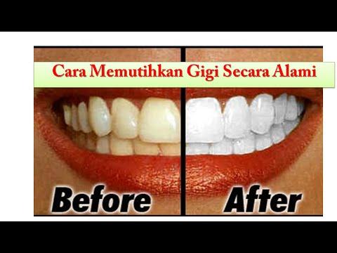 Tips Cara Memutihkan Gigi Secara Alami Dan Cepat Youtube