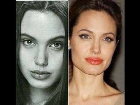 47 Celebrity Nose Jobs. Before and After - YouTube
