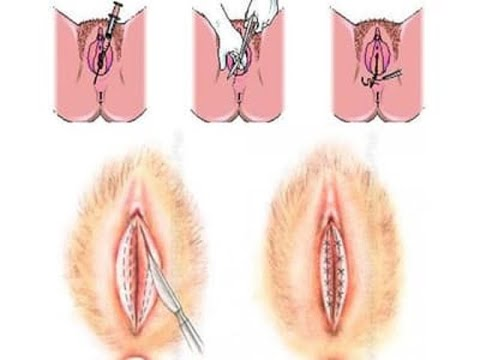 Female Genital - Medical Examination from YouTube · Duration:  23 minutes 10 seconds