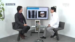 [기획취재] 관절염, 휜다리 교정술로 치료한다!