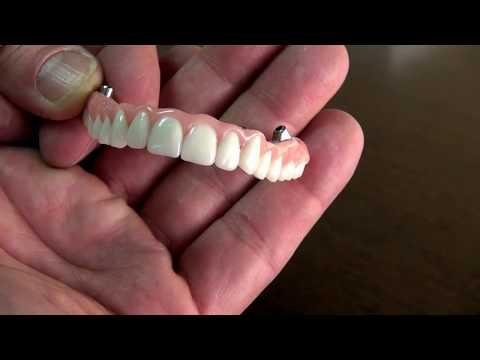 Dental Implants by Dr. Sean Mohtashami of All Bright Dental