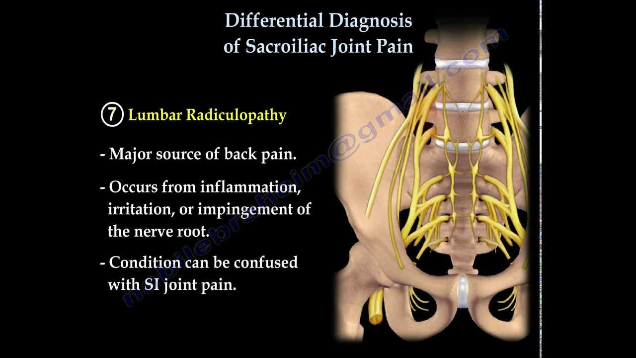 Knee pain diagnosis test - Differential Diagnosis Of Si Joint Pain Everything You Need To Know Dr Nabil Ebraheim Youtube