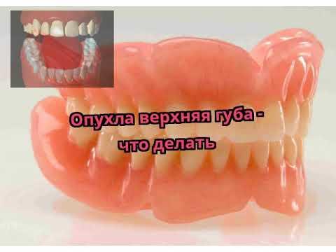 Опухли и болят губы