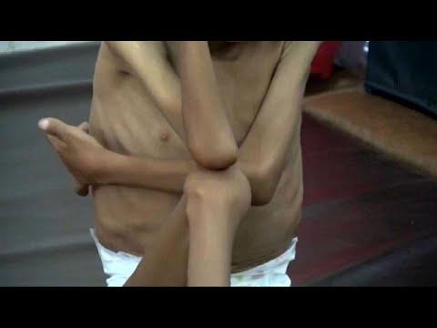 Jemen: Hungersnot mit Millionen von Toten befürchtet