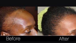 GROW YOUR HAIR FAST!!! WITH BLACK JAMACIAN CASTOR OIL | NATURAL HAIR GROWTH TIP