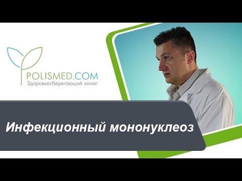 Мононуклеоз, симптомы и лечение инфекционного мононуклеоза