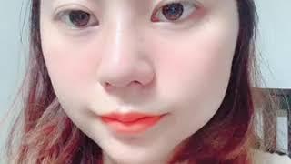 쭈밍의 코 수술 (비중격, 복코, 짧은코, 절골, 콧볼…
