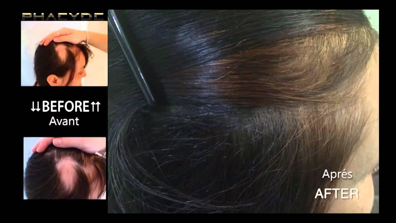 greffe de cheveux femme noire coiffures la mode de cette saison. Black Bedroom Furniture Sets. Home Design Ideas