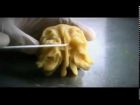 Hueso etmoides - YouTube